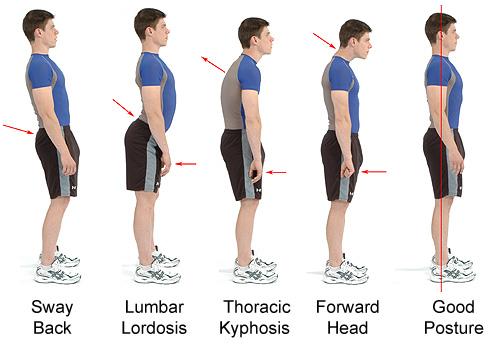 bad-good-postures.jpg