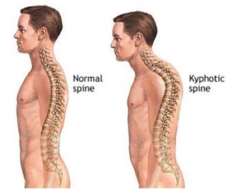 kyphosis.jpg